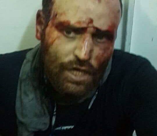 Libyan Forces Capture Fugitive Egyptian Militant